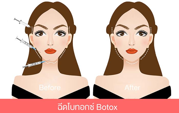 ฉีดโบท็อกซ์ botox กับฟีร์บิวตี้คลินิกภูเก็ต Phuket