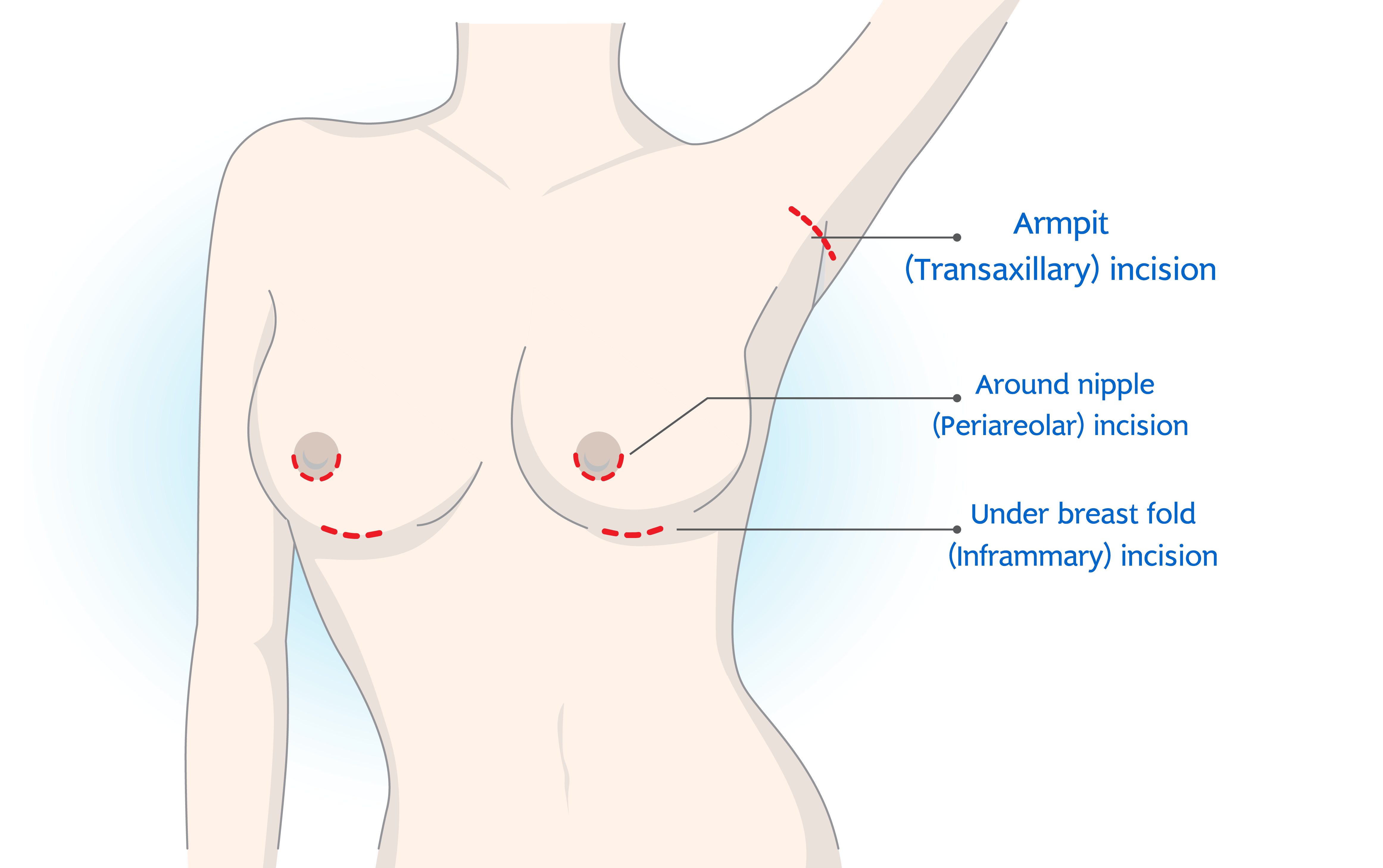 Position of the Incision