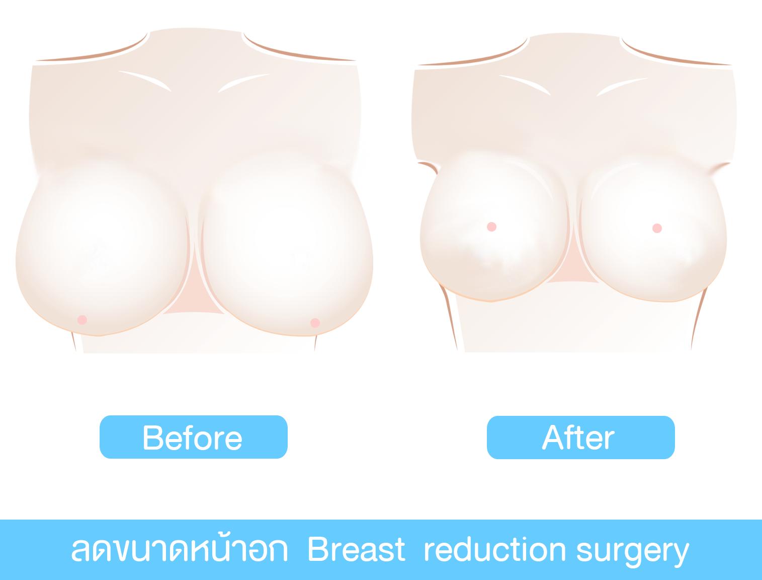 การผ่าตัดลดขนาดเต้านม