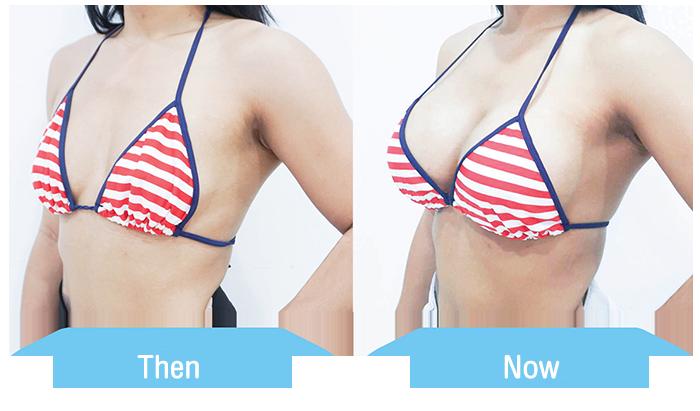 การผ่าตัดเพิ่มขนาดของเต้านม แก้ไขเต้านมที่หย่อนคล้อย เสริมหน้าอกร่วมกับการผ่าตัดยกกระชับเต้านม breast augmentation
