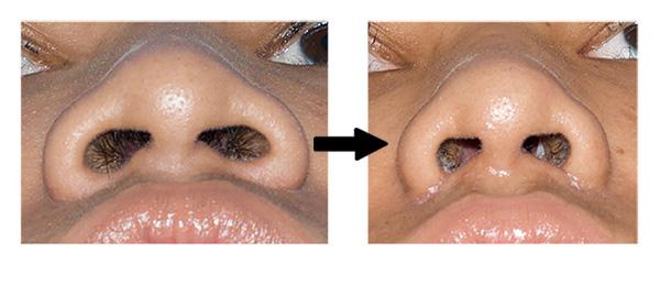 การผ่าตัดเสริมจมูกแบบเปิด สร้างปลายจมูกใหม่ ให้ดูมีหยดน้ำที่ปลายจมูก
