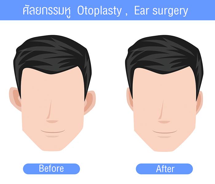 การผ่าตัดศัลยกรรมแก้ไขหูกาง