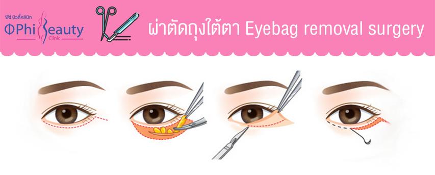 ขั้นตอนการผ่าตัดถุงใต้ตา