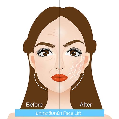 ผ่าตัดดึงหน้าหรือยกกระชับหน้า face lift