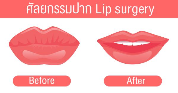 ทำปากบาง, ปากกระจับ, Lip surgery