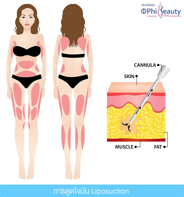 บริเวณที่สามารถดูดไขมันได้, area can liposuction
