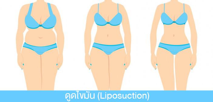 การดูดไขมัน Liposuction