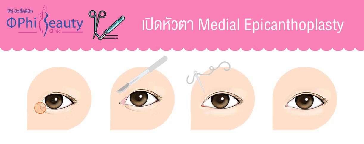 ขั้นตอนการทำการผ่าตัดศัลยกรรมเปิดหัวตา