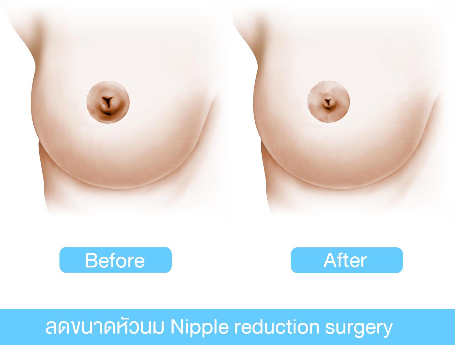 การผ่าตัดลดขนาดหัวนม