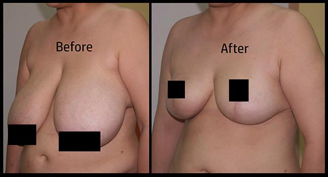 ก่อนการผ่าตัดศัลยกรรมลดขนาดเต้านมและหลังการผ่าตัดศัลยกรรมลดขนาดหน้าอก
