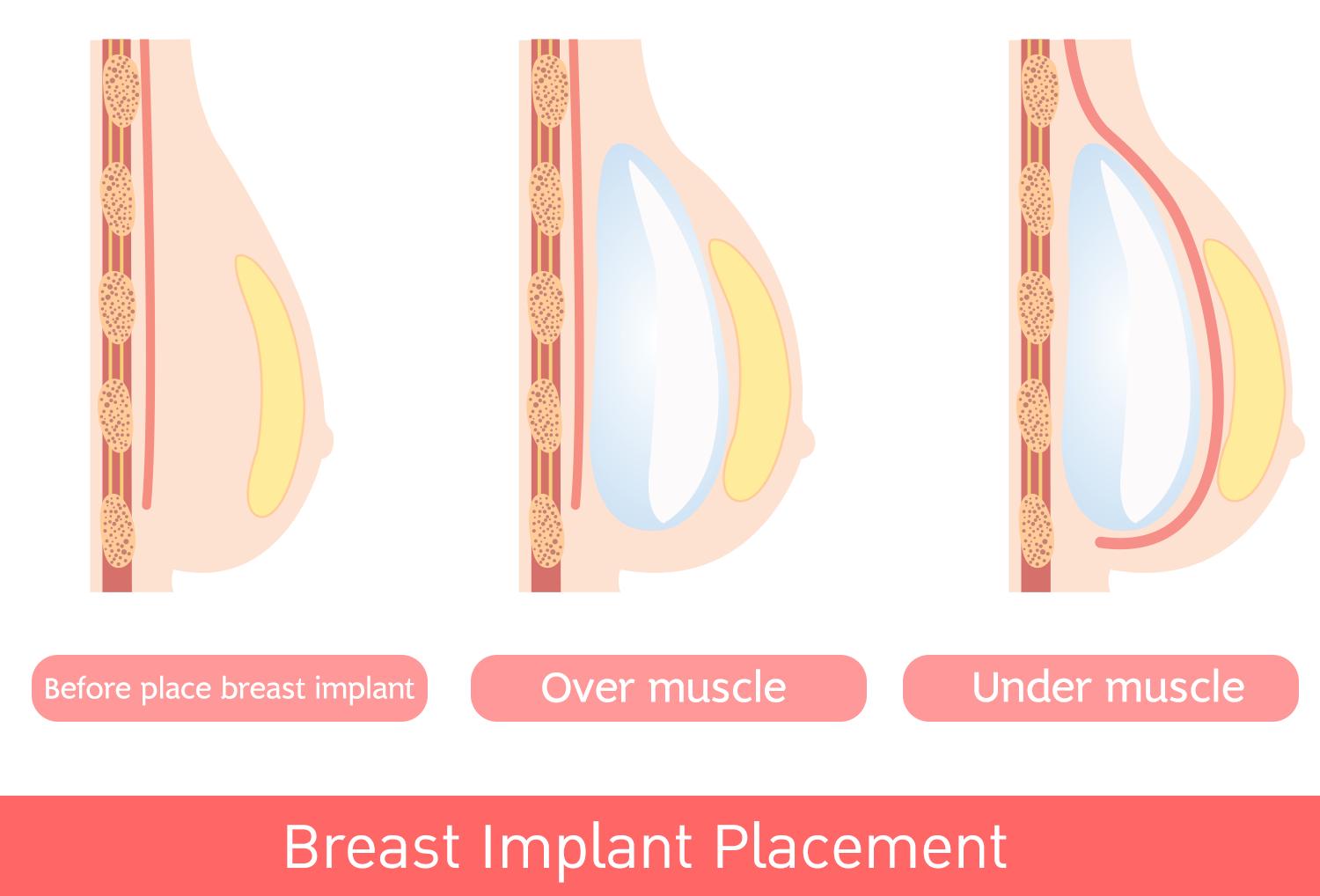 Breast Incision: Inframammary incision or under breast, Transaxillary and Periareolar